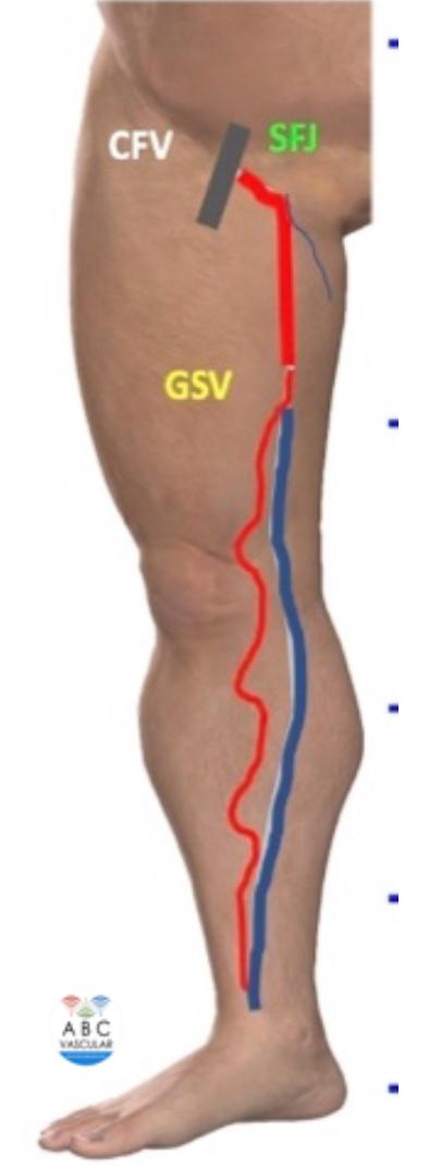 venous reflux care of ABC Vascular
