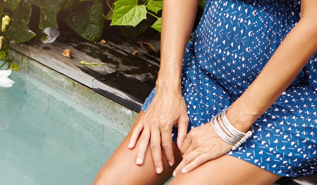 Varicose vein and pregnancy