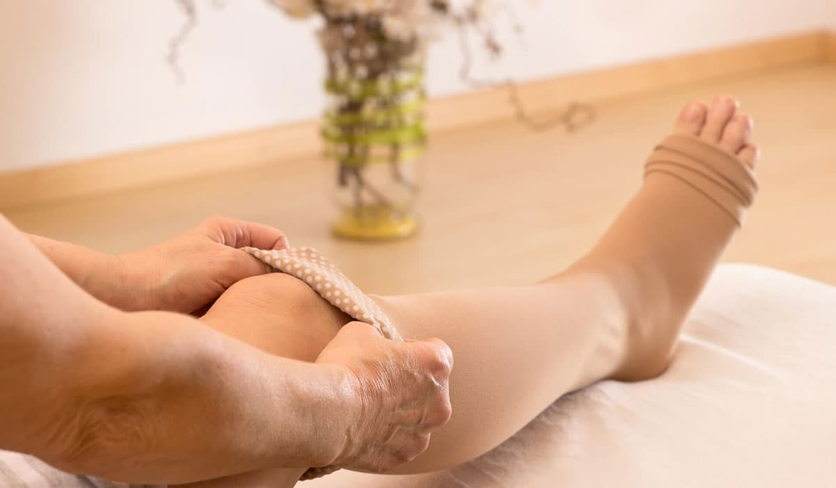 Vein Treatment Aftercare: All Your Questions Answered