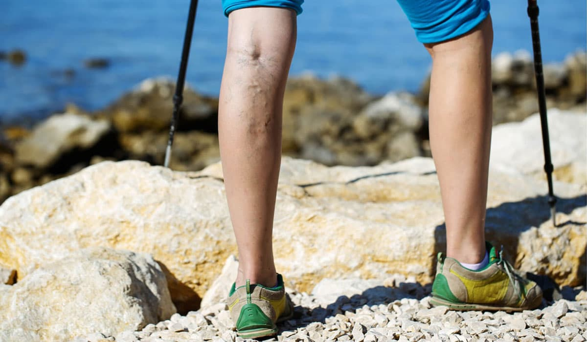Exercising with Varicose Veins: Truths vs Myths