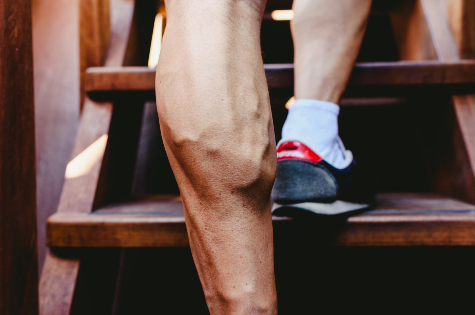 Varicose Veins in Men: Everything You Need to Know