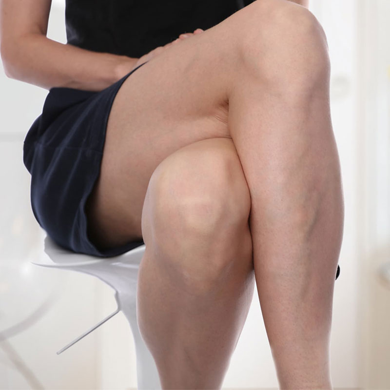 Varicose Veins and the NHS: All You Need To Know
