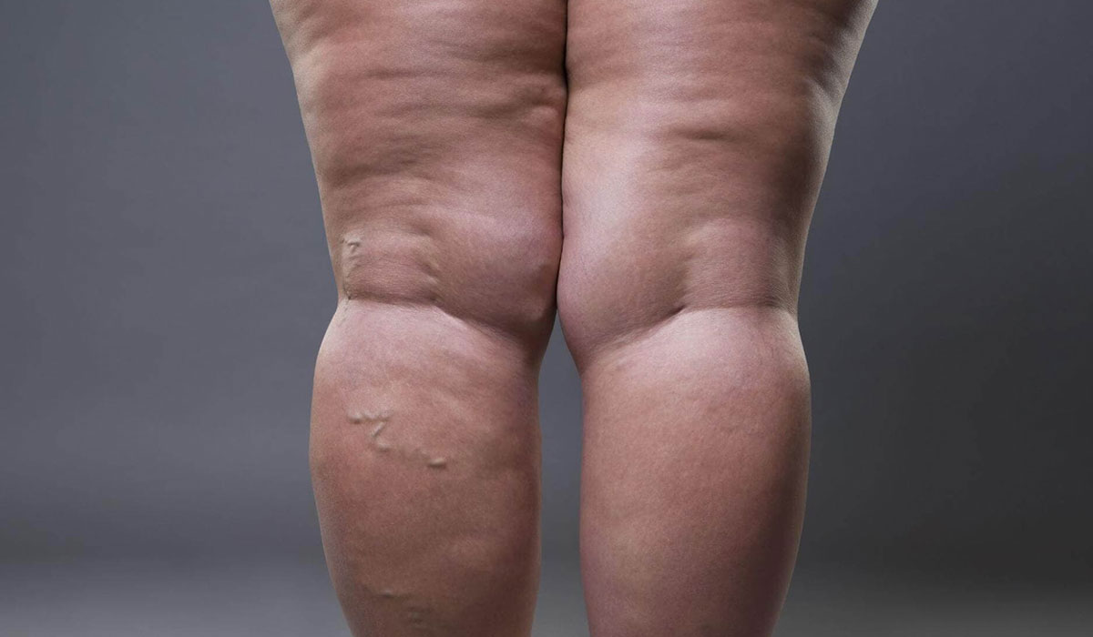 The Link Between Obesity and Varicose Veins