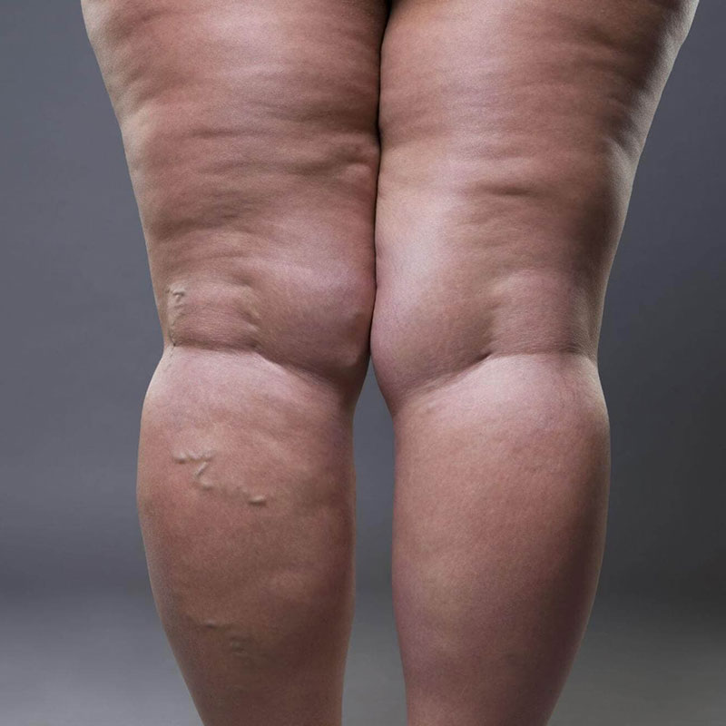 the-link-between-obesity-and-varicose-veins