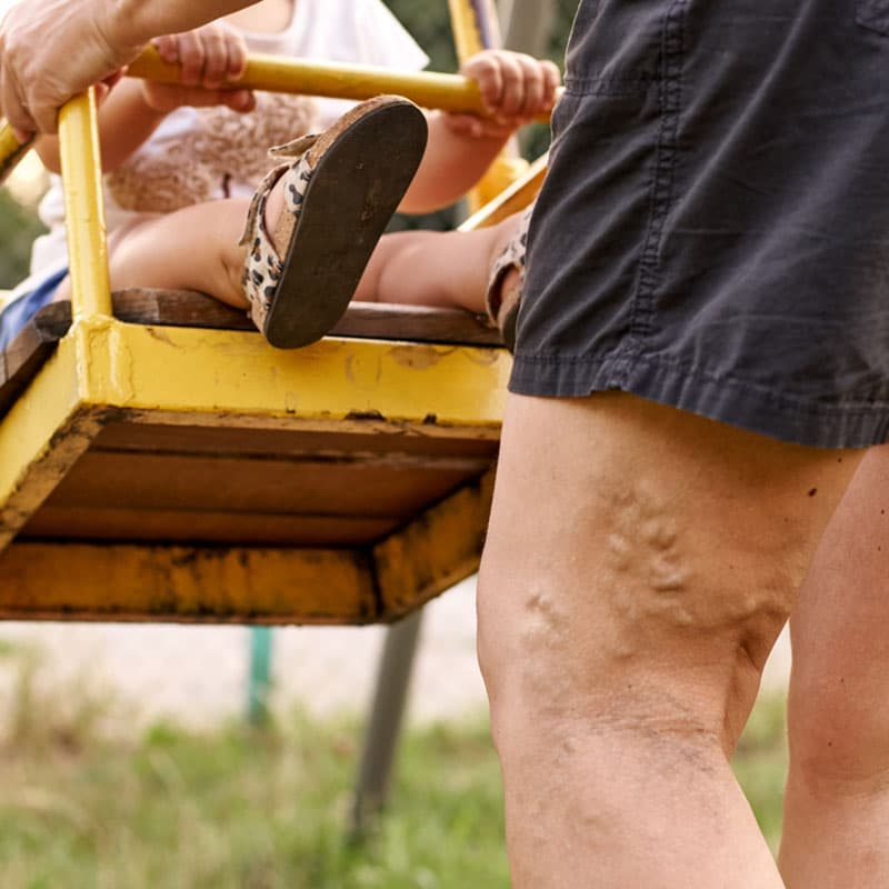 Are You at Risk of Varicose Veins?