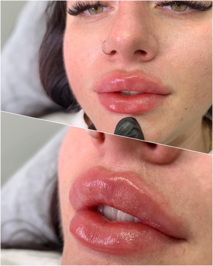 Russian lips by Australias best russian lip injector