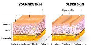 Profhilo and Skin
