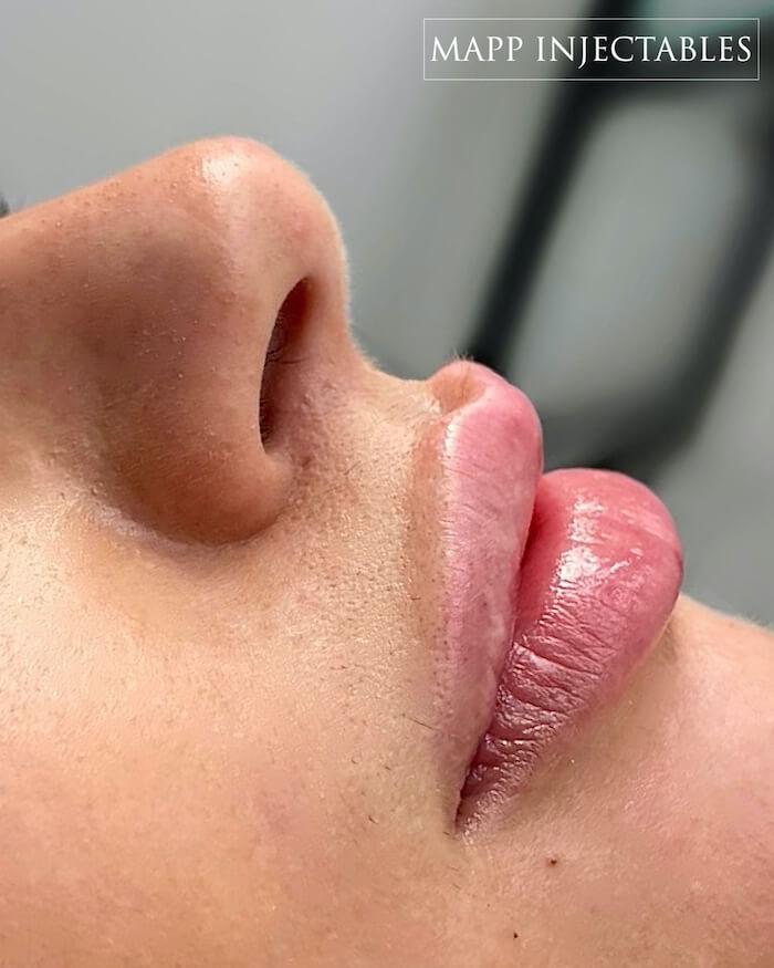 lip border