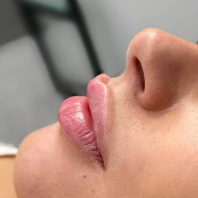 Side angle of Russian lips with top lip lift