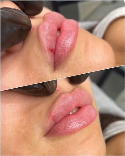 Perfect lip shape and volume using 1ml of lip filler