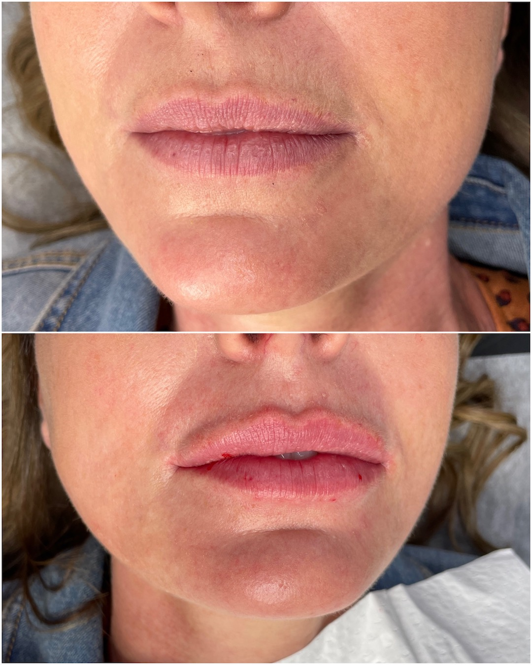 Thin or soft lip filler before and after