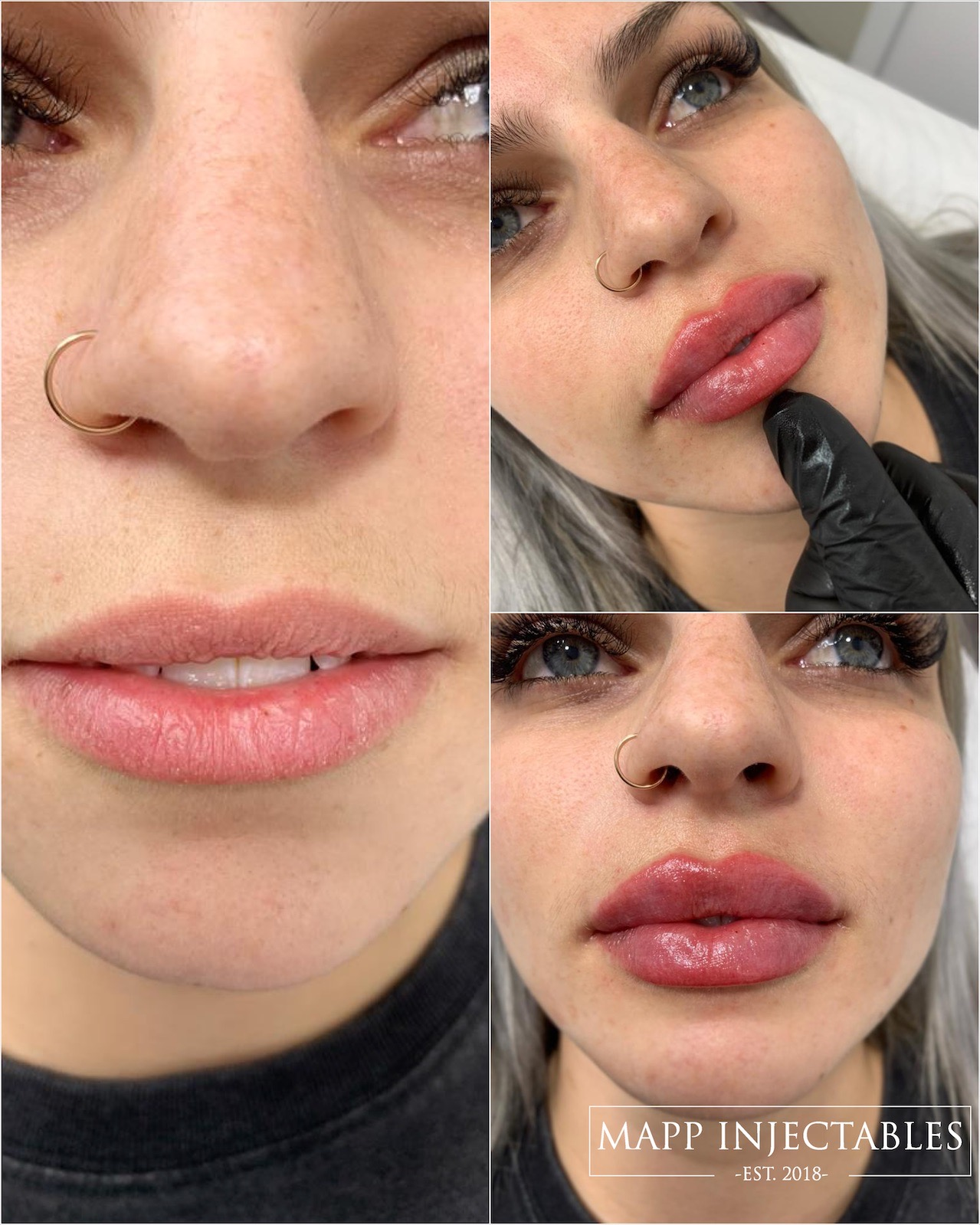 Thick lip filler before and after