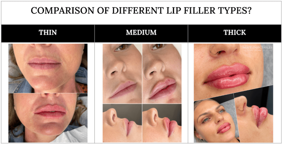 Comparison of thin, medium and thick lip fillers
