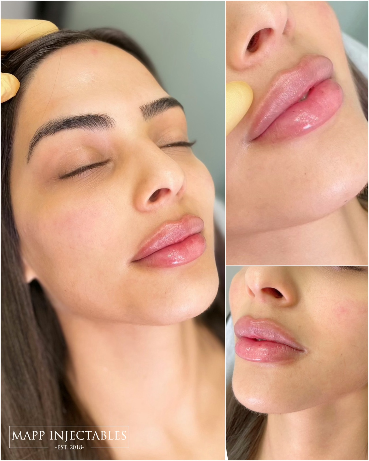 Medium lip filler before and after