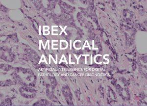 Ibex is born!