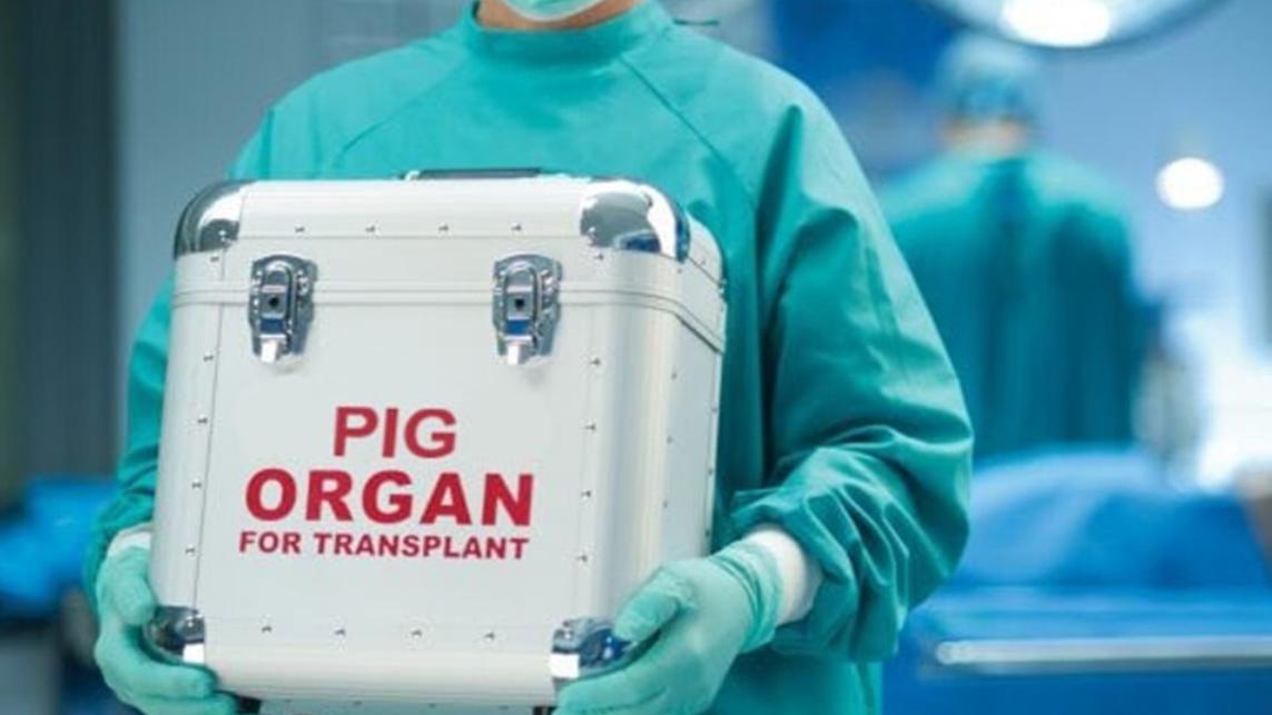 New Organs