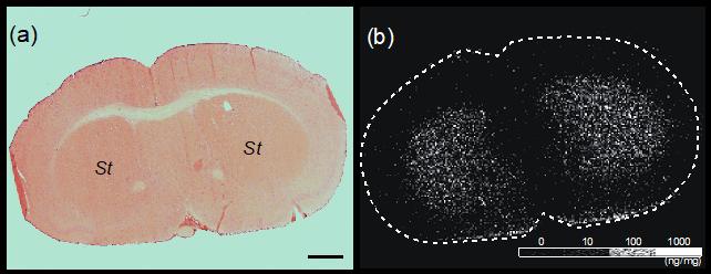神経伝達物質 質量分析イメージング マスイメージング