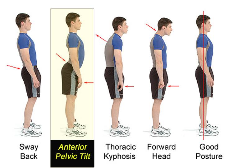 Anterior pelvic tilt examples