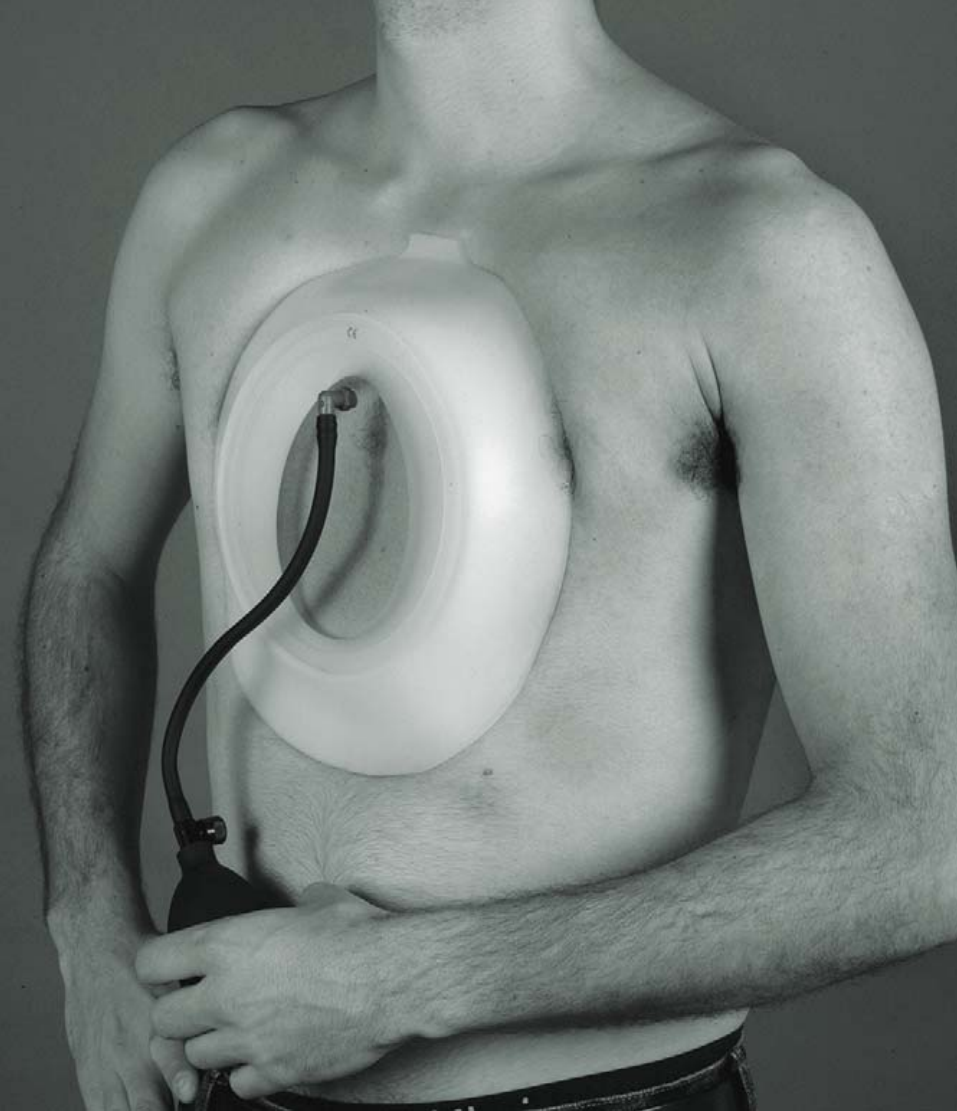 Man with vacuum bell attached to his chest