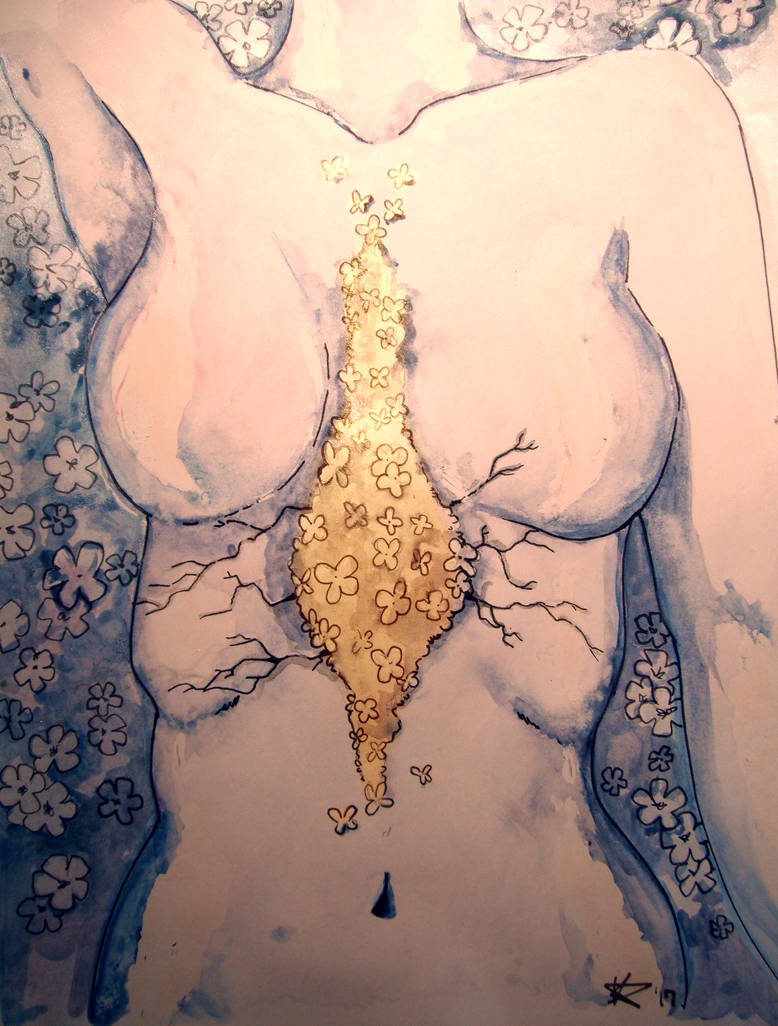 painting of a woman with pectus excavatum with flowers in the middle of her chest