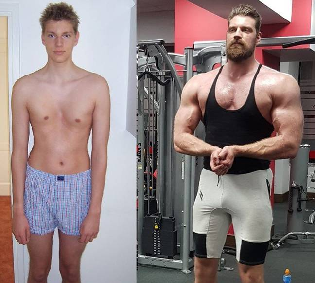 oliver richters before and after pectus surgury