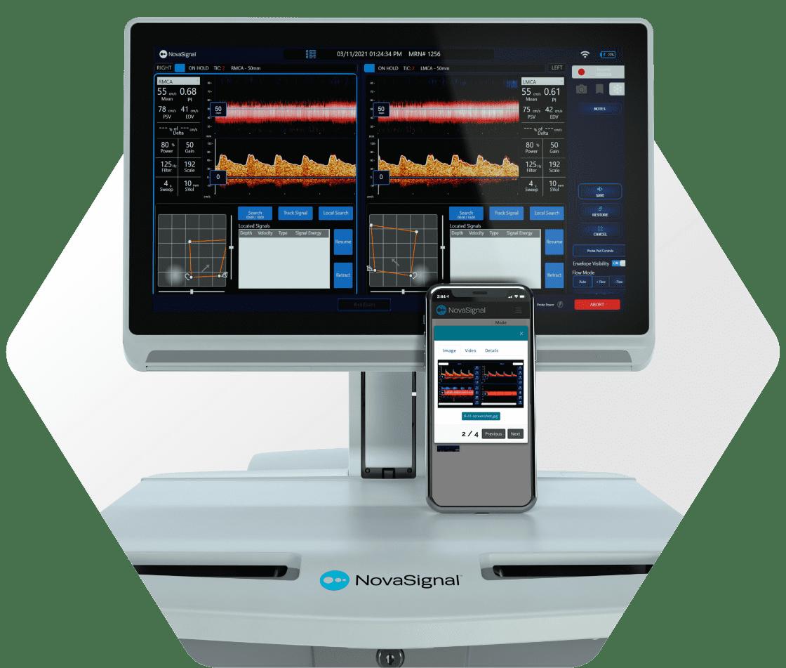 NovaGuide 2 system with the NovaGuide View app