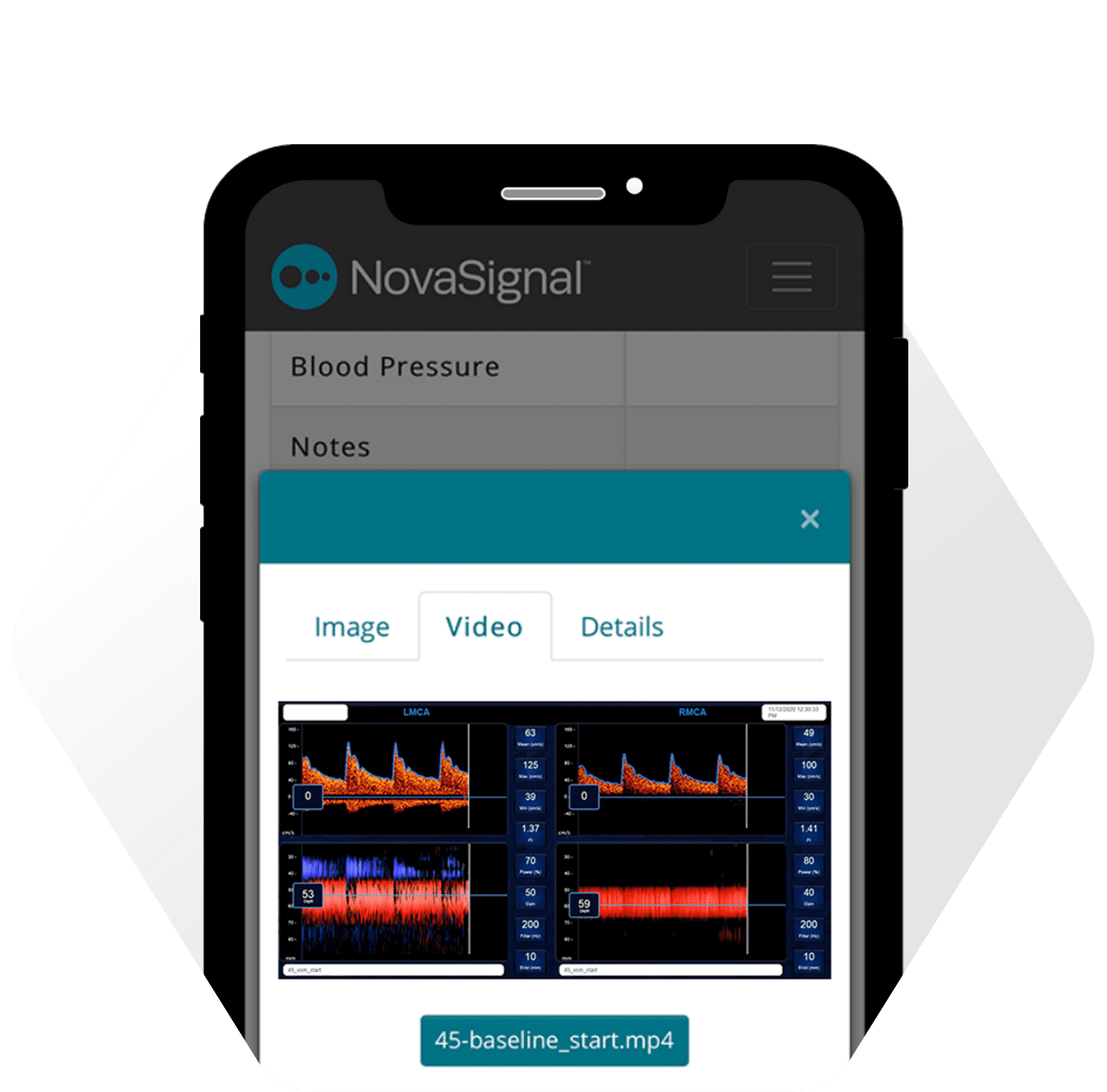 NovaGuide View app with a diagram of a TCD exam