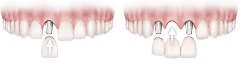 Image Showing A Dental Impant