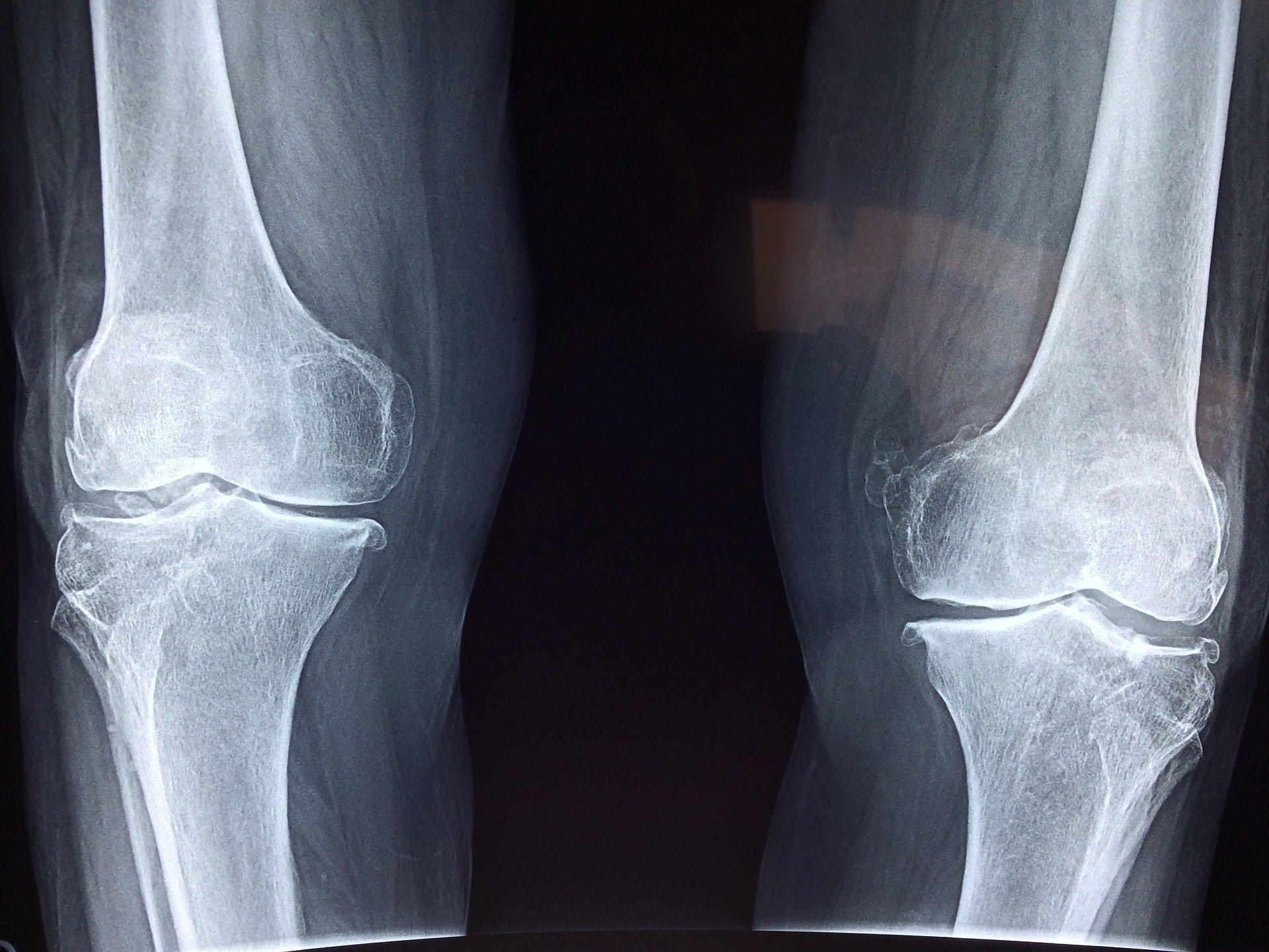 X-ray image of bones.