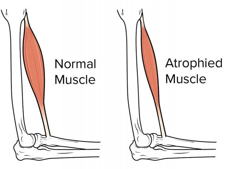 Atrophy is the progressive degeneration or shrinkage of muscle or nerve tissue.