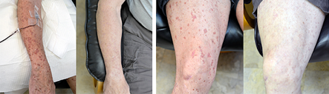 patient arm and leg - before and after