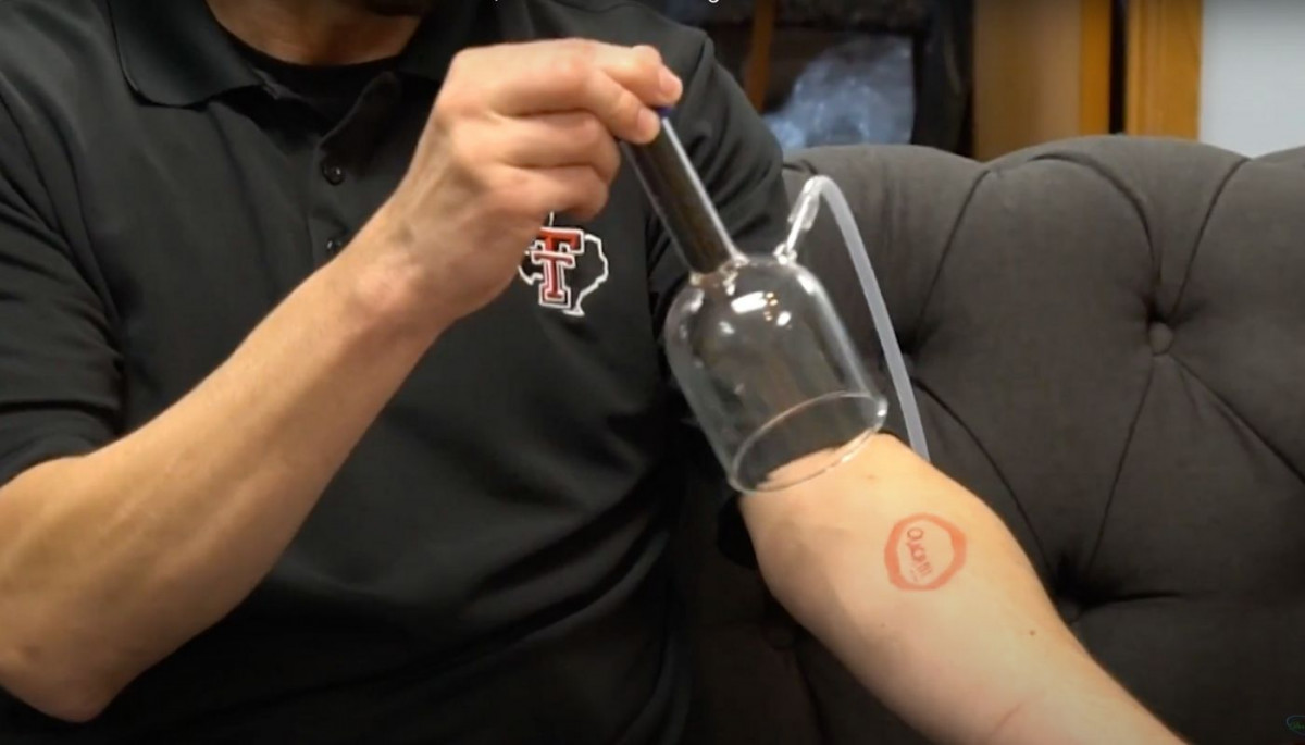 Ozone Cupping for Skin Wounds and Infections
