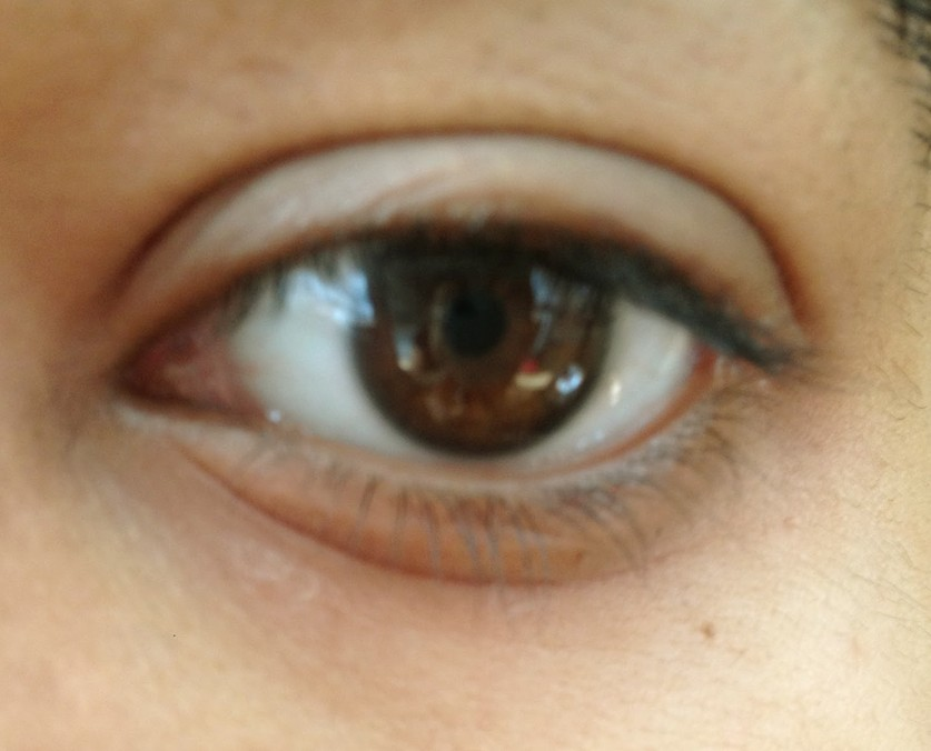 dry skin around eyes pictures