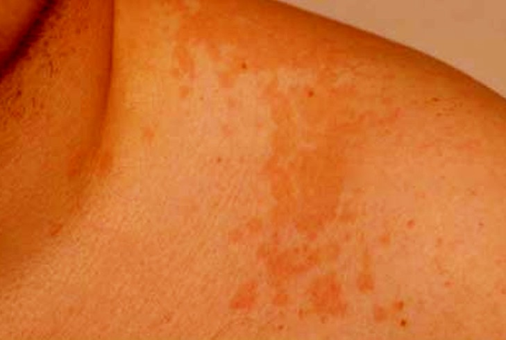 pityriasis versicolor pictures 2
