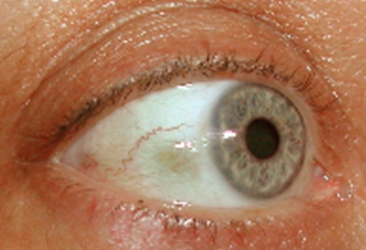 bump on eyeball pictures 2
