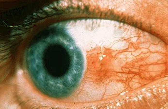 bump on eyeball pictures