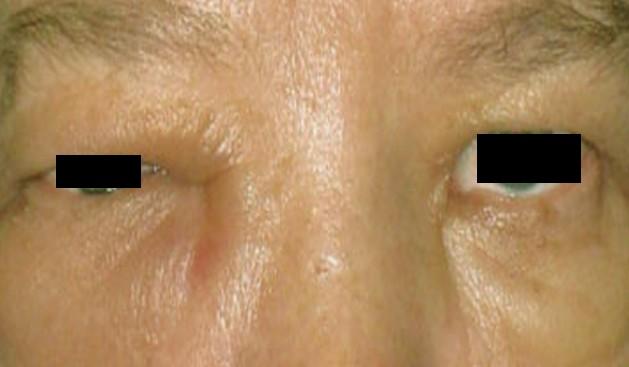 periorbital edema pictures 2