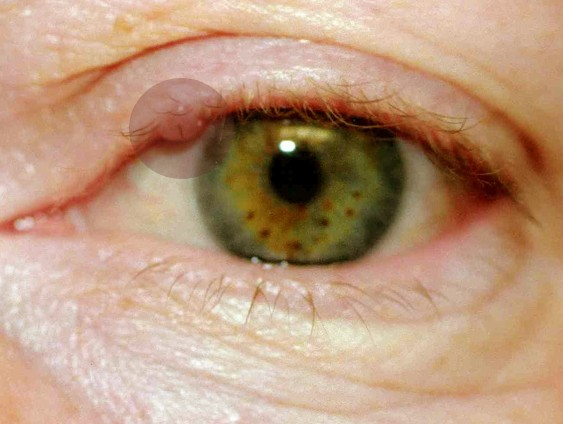 cyst on eyelid pictures 4