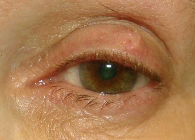 cyst on eyelid