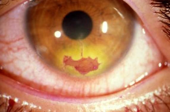 herpes keratitis pictures