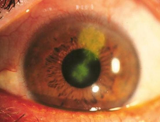 herpes keratitis