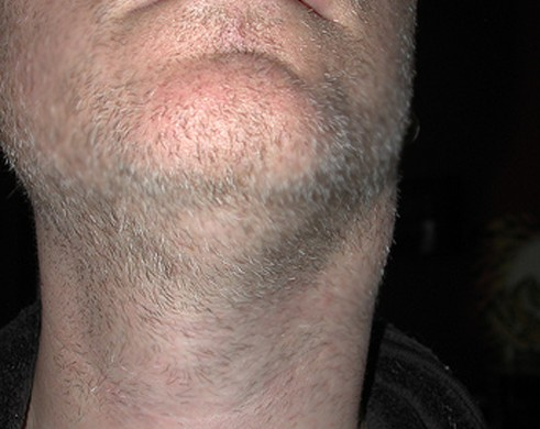 lump on side of neck pictures