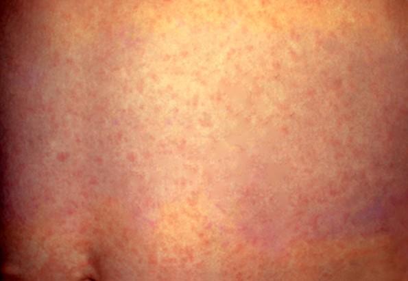 maculopapular rash pictures