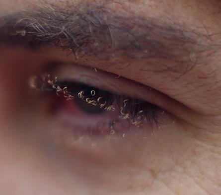 burnt eyelashes