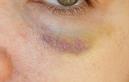 bruising easily