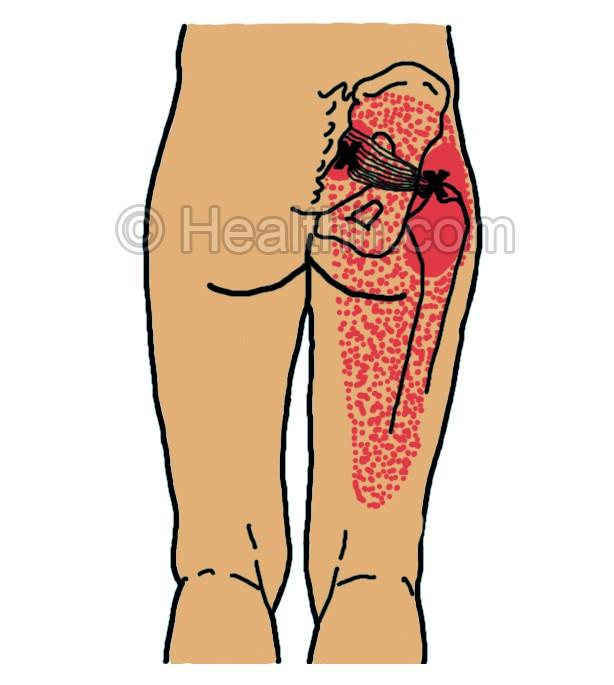 ischial bursitis pain