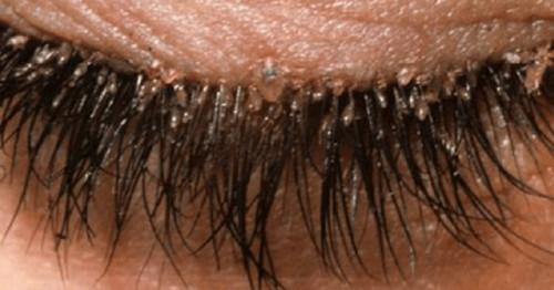 Eyelashes infested with eyelash mites image picture photo
