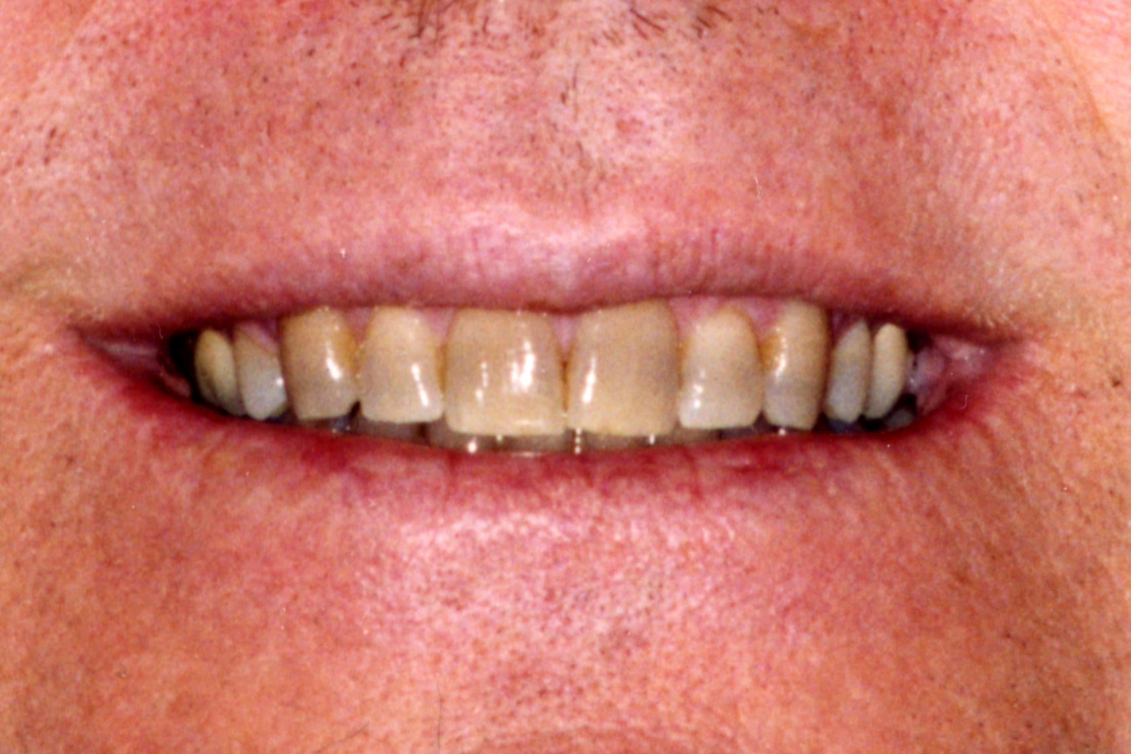 Before photo yellowed teeth