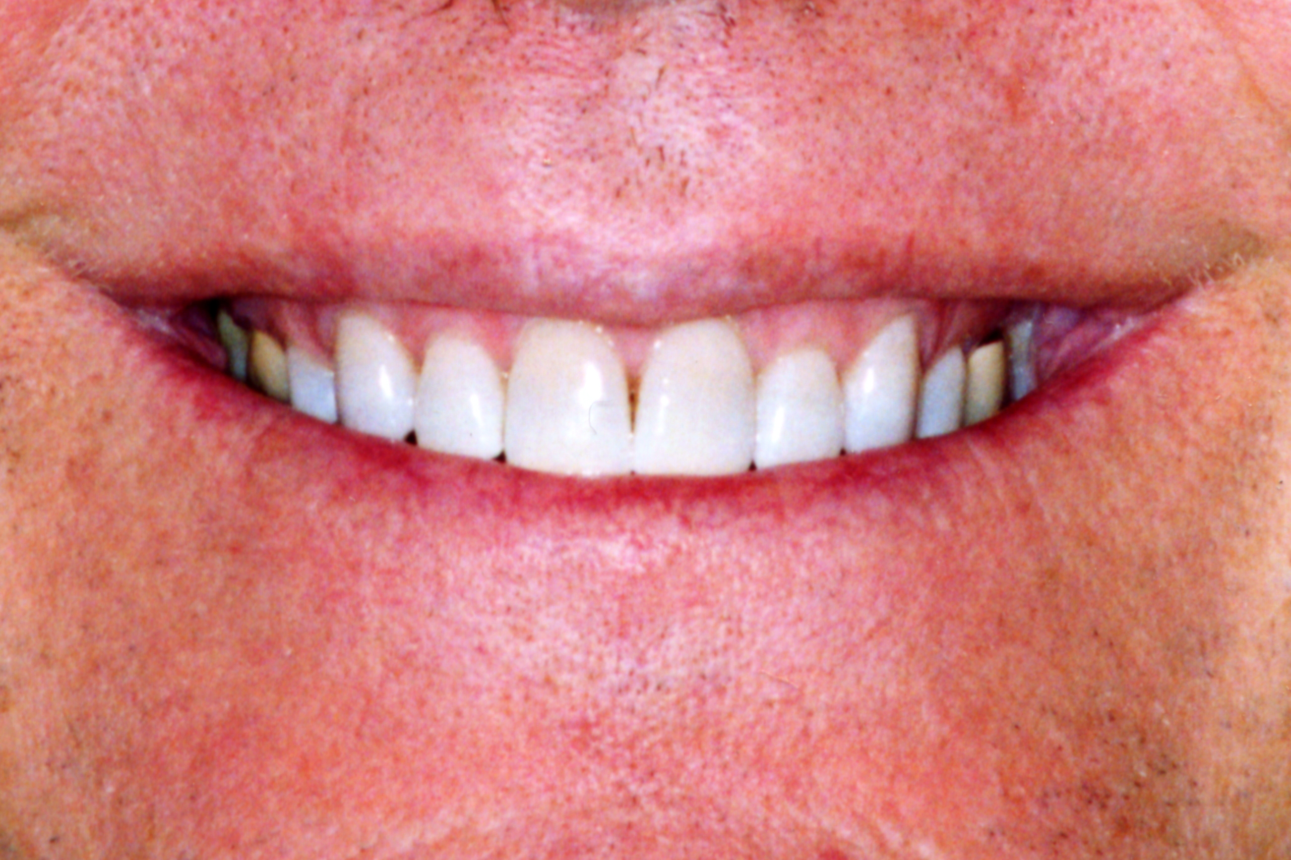 After photo whitened teeth
