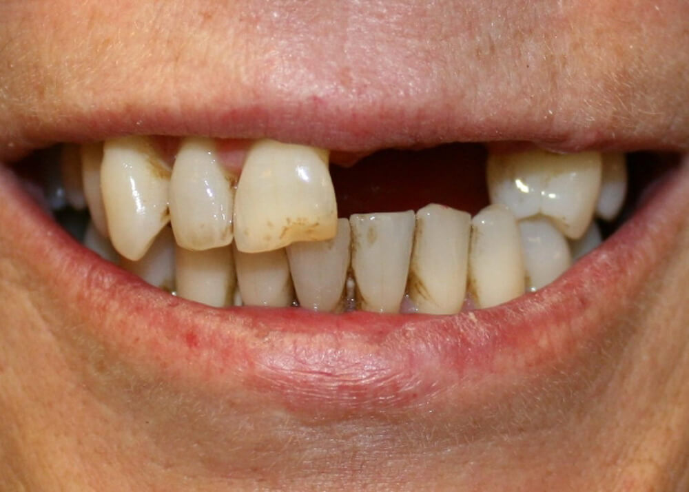 Upper partial denture